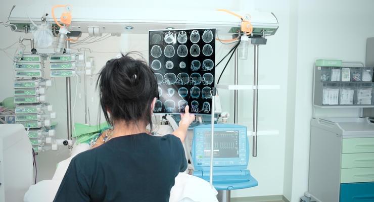 НСЗУ увеличила тариф на лечение инсультов в Украине